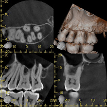 歯科用CT画像